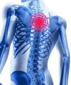 Mid Back Pain and Chiropractic